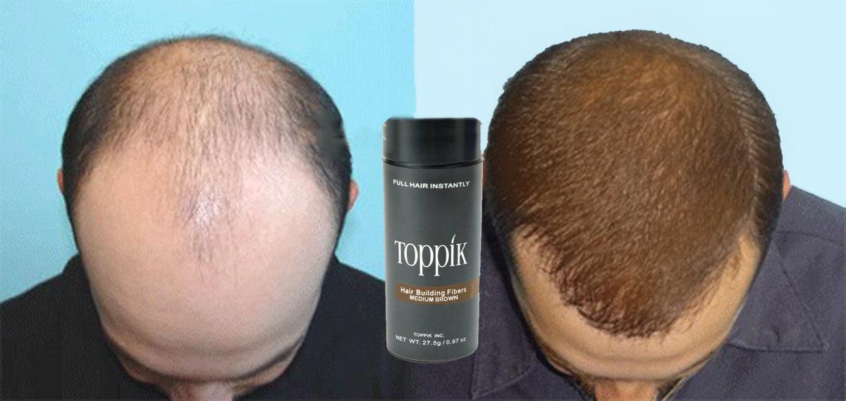 Toppik Hair Fibers لفراغات الشعر ( بني وسط - Meduim Brown )