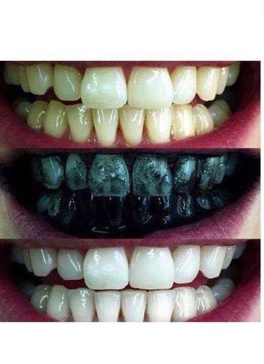 معجون اسنان بالفحم Dont Dent
